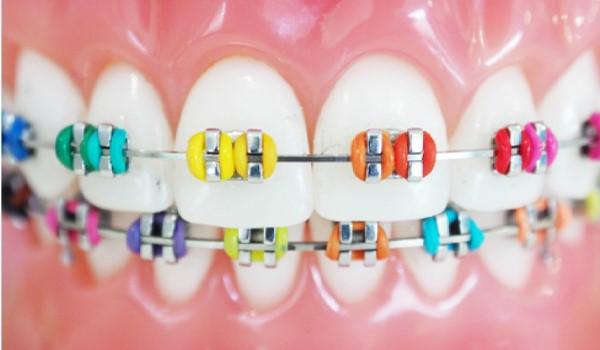 کش دندان در ارتودنسی
