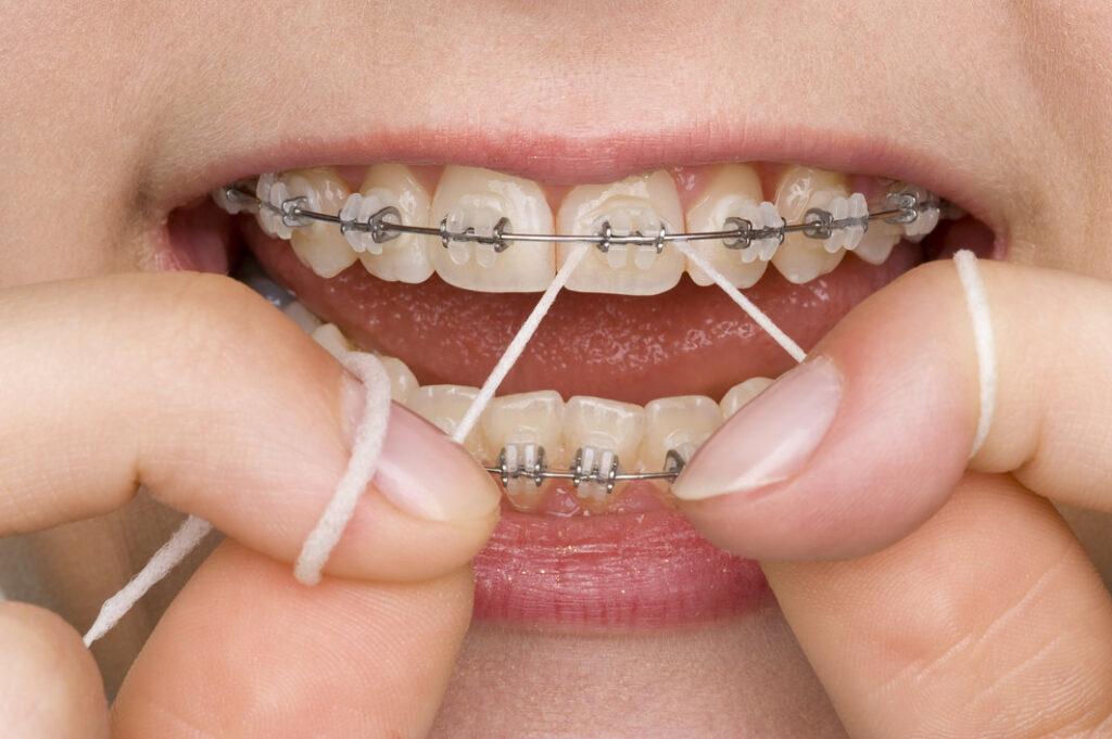 نخ دندان مخصوص ارتودنسی