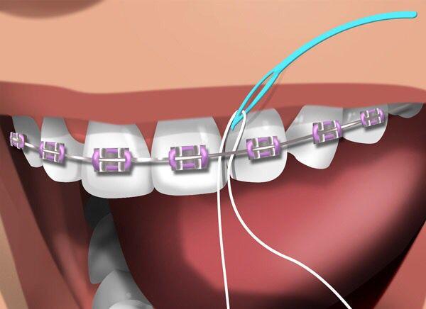 انواع نخ دندان مخصوص ارتودنسی