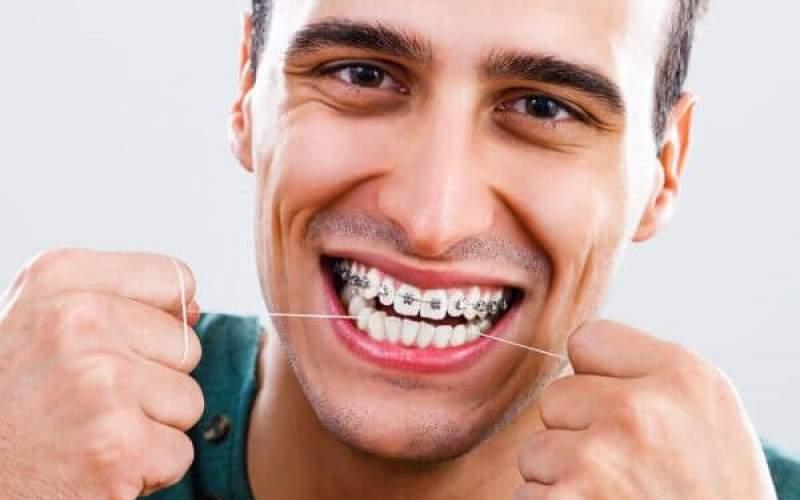 اصول مراقبت از دندان در موقع ارتودنسی