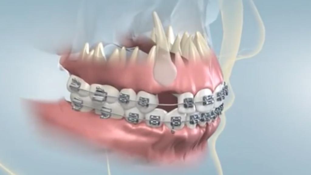 درمان دندان نیش نهفته