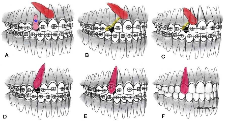 ارتودنسی دندان نیش نهفته