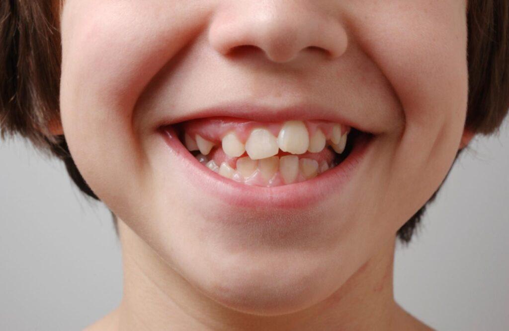 علت ایجاد و تشخیص دندان نیش نهفته