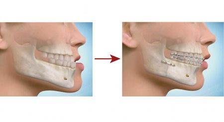 مراحل انجام ارتوسرجری دندان