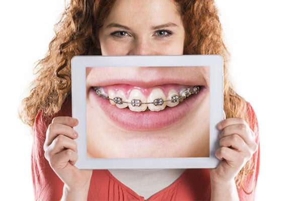 روش درمانی ارتوسرجری دندان