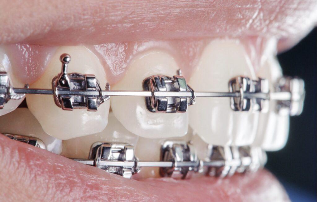 درمان زخم دهان بعد از ارتودنسی داروی درمان آفت دهان ناشی از سیم کشی دندان