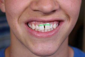 تغییر رنگ دندان در ارتودنسی