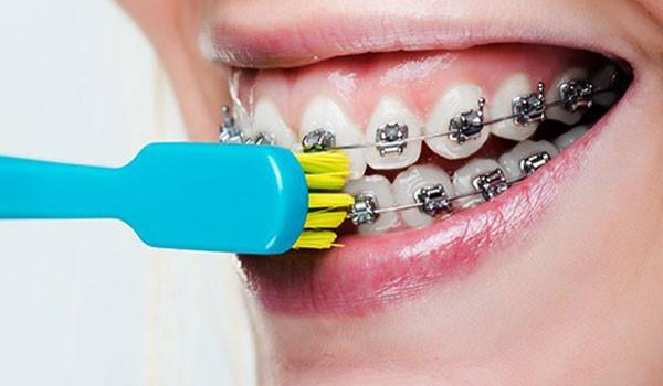 انواع خمیر دندان مخصوص ارتودنسی