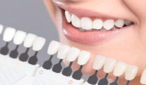 کامپوزیت دندان، در مقابل ارتودنسی