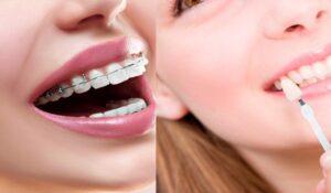 ارتودنسی و کامپوزیت دندان