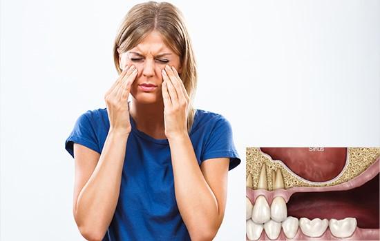 عوارض احتمالی پس از عمل سینوس لیفت چیست