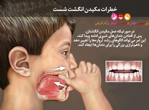 خطر مکیدن انگشت برای دندان