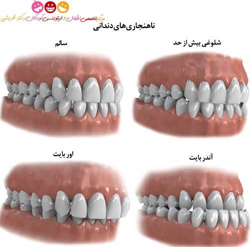 ناهنجاری های دندانی