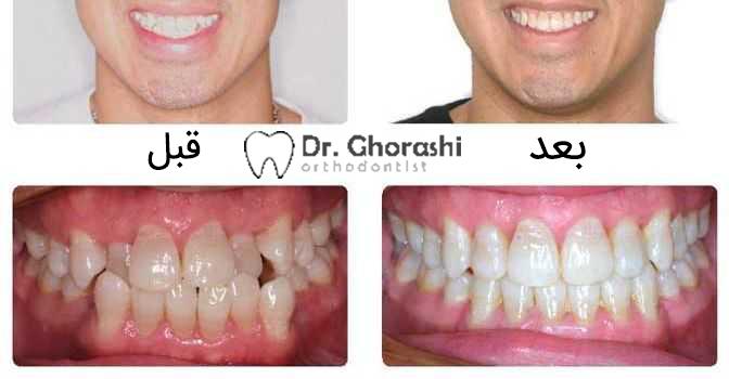 عکس ارتودنسی دندان قبل و بعد