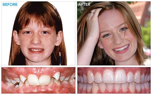 26-1 جراحی و کشیدن دندان عقل نهفته