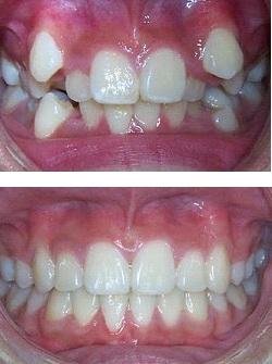 معایب کشیدن دندان در ارتودنسی