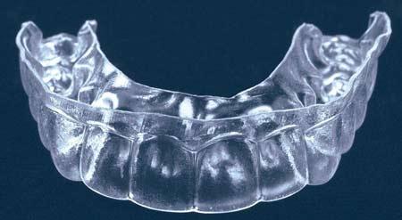 کشیدن دندان نیش دوم برای درمان ارتودنسی