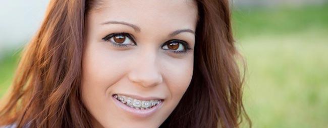 beliching سفید کردن دندان یا بلیچینگ هنگام درمان ارتودنسی