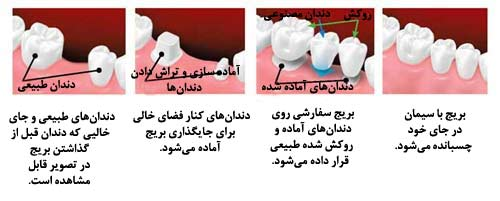 مراحل بریج دندان