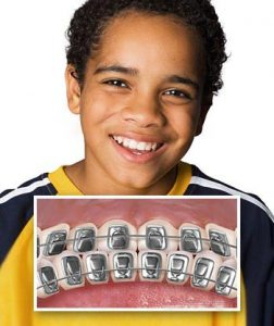 انواع ارتودنسی دندان کودکان